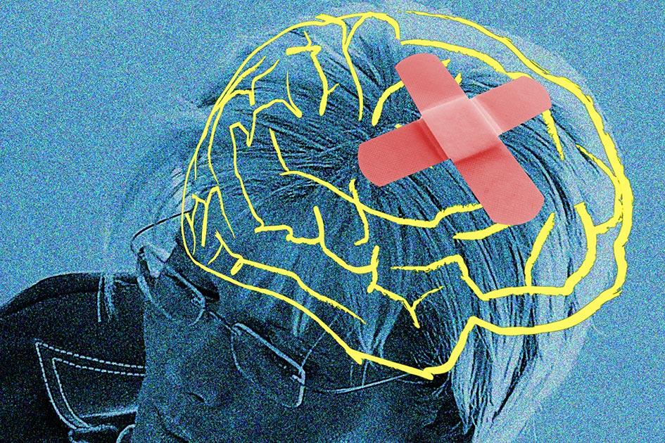 Gehirn Foto Mensch Kopfschmerz Heilung Frau / Foto: TELOS - 10762kb