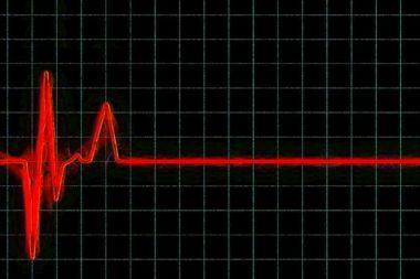 Arzt Oszilloskop Herzschlag Tod / Grafik: TELOS - 2797